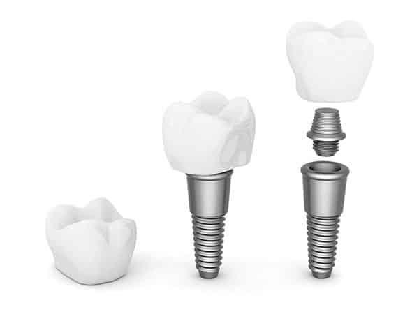 dental implants20152