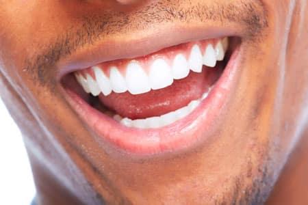 dental laminates20165b