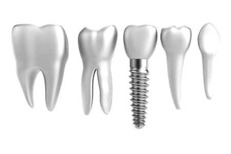 dental implants20168
