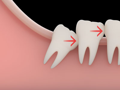 wisdom teeth extraction20174