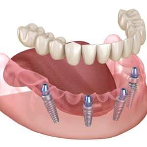 asha dental leawood ks Services All on 4 Image