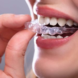 asha dental leawood ks Services Clear Aligners Image