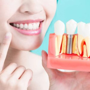 asha dental leawood ks Services Implant Supported Dentures Image