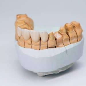 asha dental leawood ks Services Metal Free Restorations Image