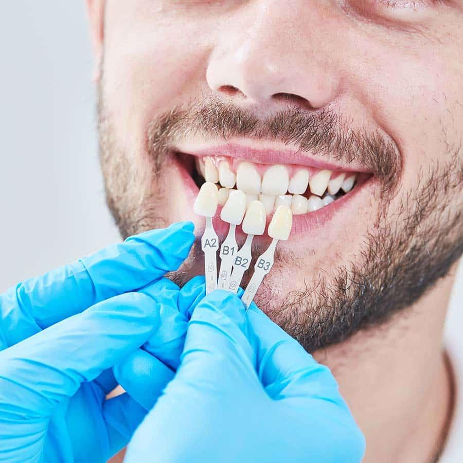 asha dental leawood ks Services Veneers Image