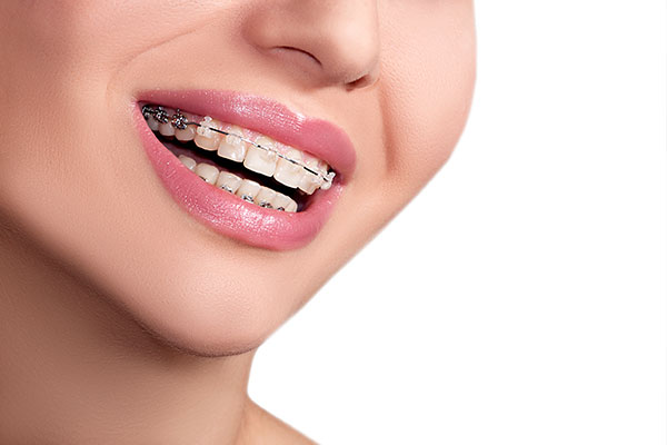 Types Of Orthodontic Treatments