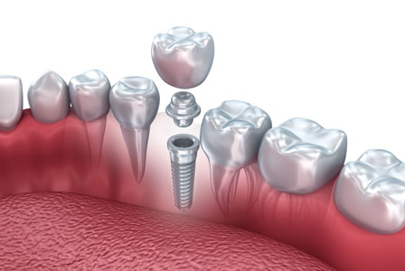 CEREC And Dental Implants