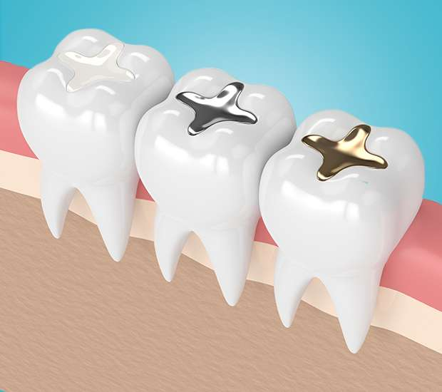 Leawood Composite Fillings