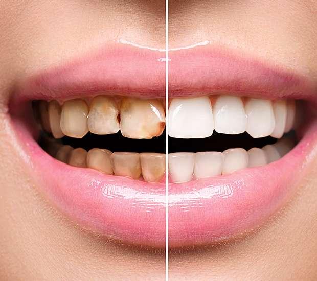 Leawood Dental Implant Restoration