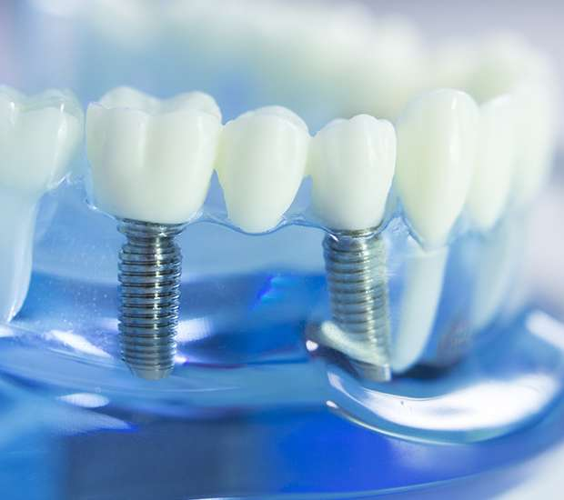 Leawood Dental Prosthetics