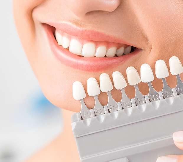 Leawood Dental Veneers and Dental Laminates