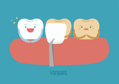 Dental Veneers