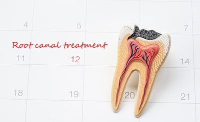 Get Relief From An Infected Tooth With A Root Canal Treatment
