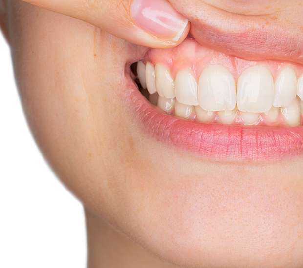 Leawood Gum Disease