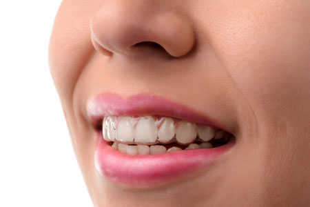 What Happens After My Invisalign® Treatment?